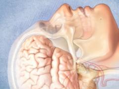 Ученые использовали изменения активности мозга для лечения больных ПРЛ