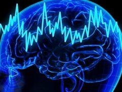 Ученые выяснили принцип воздействия электрического тока на мозг