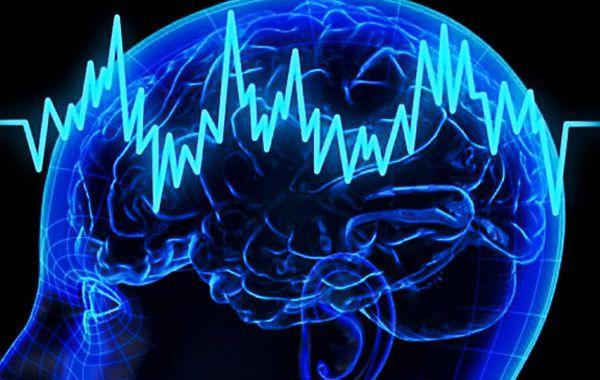 электрический ток мозг человека