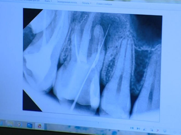 Россиянка нашла взубе забытый 13 лет назад стоматологом инструмент